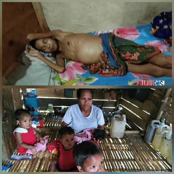 """Gambar """"Sabahat 95 Berbagi"""" Kunjungi Rumah Hendrik dan Herman, Penderita Gizi Buruk serta Busung lapar"""
