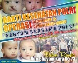 Gambar 17 Juni, Operasi Bibir Sumbing di RS Bhayangkara Polda Sulbar, Gratis !